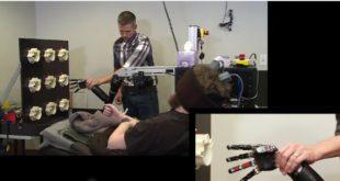 hombre tetraplejico siente mano bionica